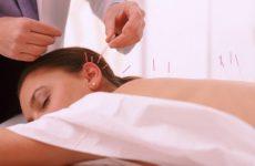 Что такое рефлексотерапия?
