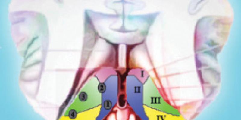Использование акупунктуры в лечении изолированного синдрома офтальмоплегии