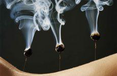 Прижигание (moxibustion)